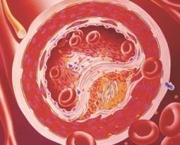 Debunking Cholesterol Myths | promienie | Scoop.it