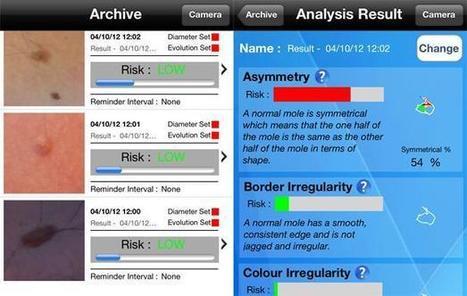 iPhone: Une appli pour repérer vos grains de beauté suspects - 20minutes.fr   Geek cosmétique   Scoop.it