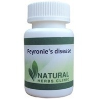 Natural Herbs For Peyronie's disease | Natural Herbs Clinic | Scoop.it