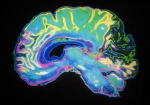 Alzheimer's may have a genetic component: scientists   Memory Loss   Scoop.it
