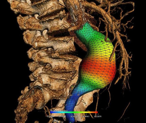 Montreal Scientists Developing New Tools to Better Visualize Angiographies, Preop CT Scans | Medgadget | Génie biomédical clinique | Scoop.it
