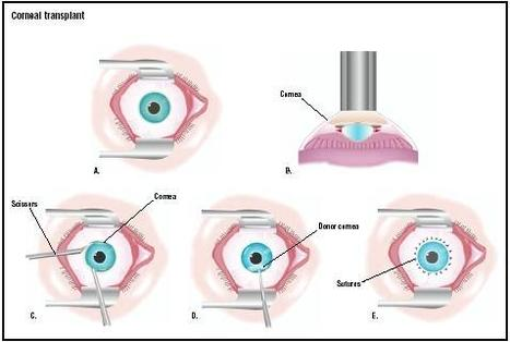 Transplanting Whole Cornea Not Always Necessary - Medical News Today | Organ Donation & Transplant Matters Resources | Scoop.it