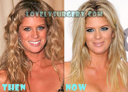 Rachel Hunter Plastic Surgery Before and After Rumor | Celebrity Plastic Surgery | Scoop.it