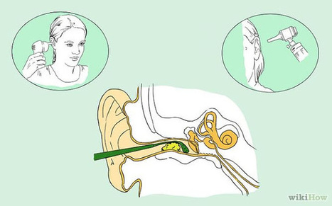 RiseEarth : How to Clean Out Your Ears Properly & Remove Ear Wax – According to ENT | URBAN FARMING | Scoop.it