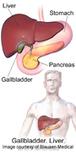 Obese Patients With Pancreatic Cancer Have Shorter Survival ... | Veille  innovation en santé et cancer | Scoop.it