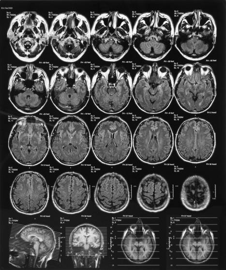 Brain Scan Can Tell PTSD Apart from Traumatic Brain Injury | Traumatic Brain Injuries | Scoop.it