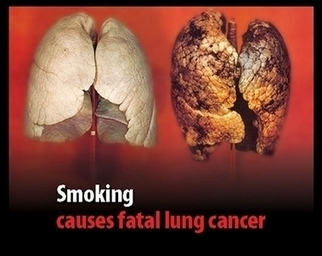 Dangers of Smoking | Vapor Cigarette Headquarters | Scoop.it