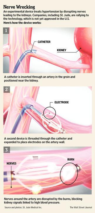 Controlling Hypertension (High Blood Pressure)  Via Kidney = Renal Denervation | Heart and Vascular Health | Scoop.it
