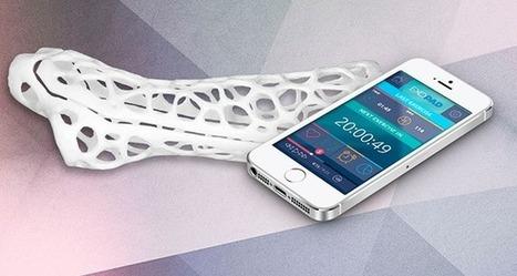 Exovite veut révolutionner le traitement des fractures grâce à l'impression 3D - 3Dnatives | 3D4Doctor | Scoop.it