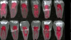 Root Canals: The Start of Problems | Daily Magazine | Scoop.it