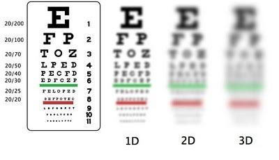 LASIK for Kids - Eye Q Optometrist (New York Orthokeratologist)   Myopia Control and Orthokeratology   Scoop.it
