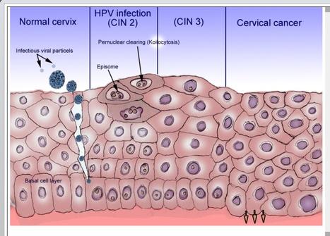 Cervical Screening | Reproductive Medicine | Scoop.it