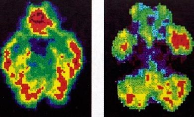 How to spot a murderer's brain | Brain, emotions and neuroscience | Scoop.it