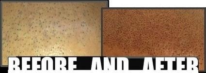 Scalp Micro Pigmentation Treatment of Baldness | Prohair Clinic | Scoop.it