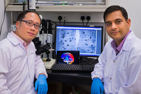 NTU scientists discover new treatment for dementia - About Psychology Degrees | Psychology Matters | Scoop.it