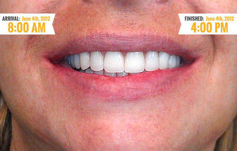 ByDesign Dental Implants - A Good Reason to Smile | Inexpensive Dental Implants cost | Scoop.it