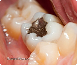 Dental Amalgam Fillings and Cancer | Cancer - Advances, Knowledge, Integrative & Holistic Treatments | Scoop.it