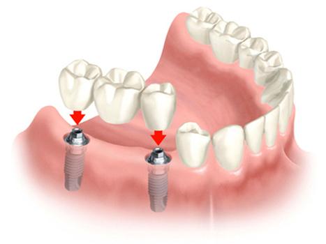 Implant   Website chophien   Scoop.it
