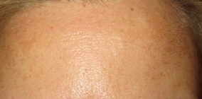Laser Treatment for Hyper pigmentation and Age Spots, Chennai | Spring MED Spa | Scoop.it