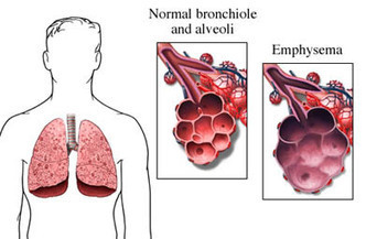 Symptoms of Chronic Obstructive Pulmonary Disease (COPD) | Group 3 | Scoop.it