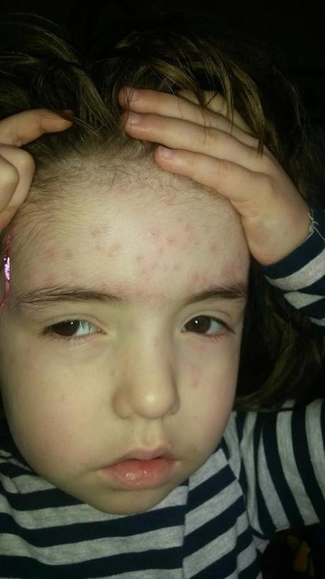 We Have Chicken Pox! | MS Mummy of Two | Scoop.it