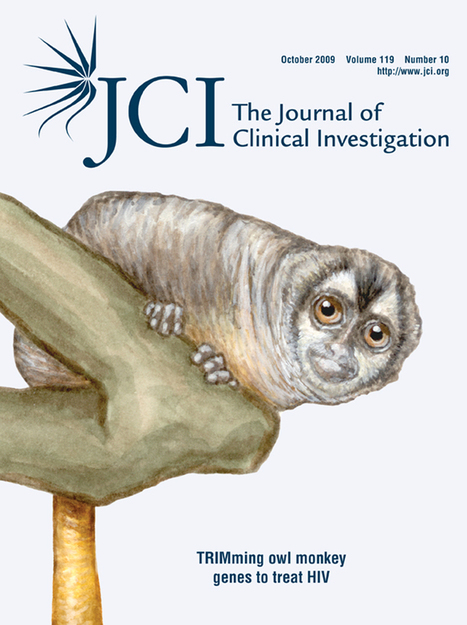 JCI - Evidence of premature immune aging in patients thymectomized during early childhood | Organ Donation & Transplant Matters Resources | Scoop.it