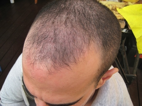 The Effectiveness of Hair Transplants and Propecia   Royal Cosmetic Surgery   Scoop.it