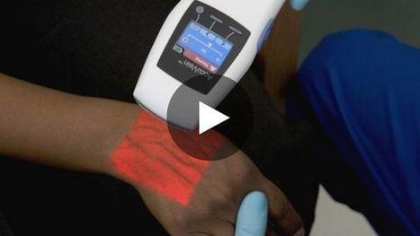 Un extraordinaire appareil qui illumine les veines   biologie médicale   Scoop.it