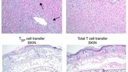 Yale Cancer Center Researchers Identify New T cell Subsets with Potential to Improve Cellular Therapy for Cancer | Immunology and Biotherapies | Scoop.it
