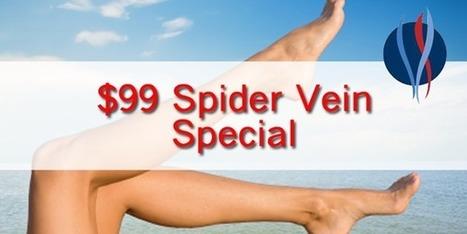 $99 Spider Vein Special via Facebook | Healthcare Updates | Scoop.it