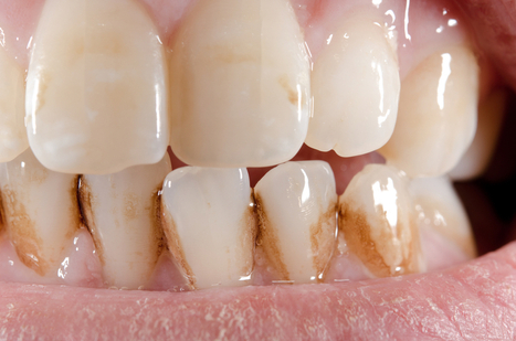 How to Get Rid of Plaque - Tartar Removal With Dental Care | Dental health conditions, Treatments & remedies. | Scoop.it
