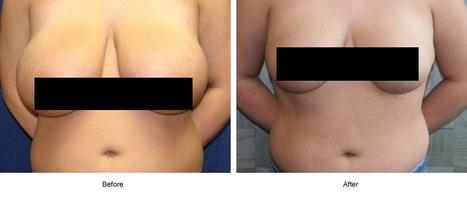 Breast Reduction/Lift- for More Proportionate Breasts | Houston Plastic and Craniofacial Surgery | Scoop.it