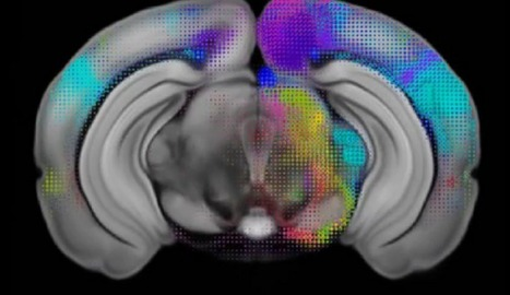 Penn Medicine 'brain road maps' reflect behavior differences between males and females | Fragments of Science | Scoop.it