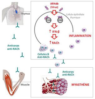 Maladie auto-immune : la piste virale confirmée - CNRS (Communiqué de presse) | SAVE YOUR HEART | Scoop.it