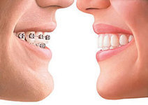 Invisalign - The Clear Alternative to Braces | Invisalign - The Clear Alternative to Braces | Scoop.it