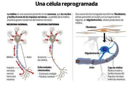 Científicos crean técnica para convertir células cutáneas en células del cerebro | Conciencia Colectiva | Scoop.it