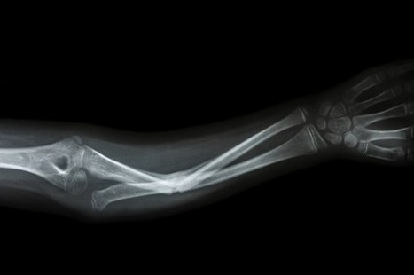 Scientists Regenerate Bone Tissue Using Only Proteins Secreted by Stem Cells | Amazing Science | Scoop.it