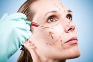 Face Lift In Los Angeles: Liquid Facelift | Twinkle, twinkle little wrinkles | Scoop.it
