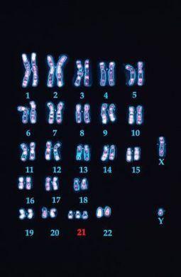 El Down excede el cromosoma 21   Zientziak   Scoop.it