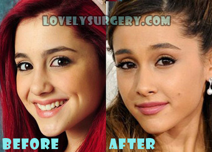Ariana Grande Plastic Surgery Before and After Nose Job | Celebrity Plastic Surgery | Scoop.it