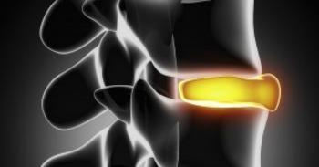 Risk Factors for Spinal Degeneration | Chiropractic + Wellness | Scoop.it