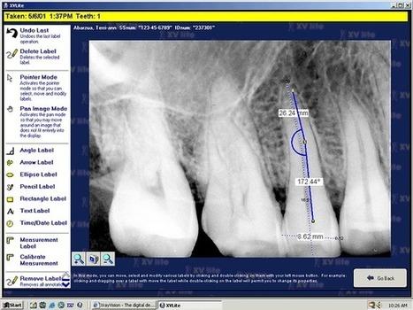 QuickImage Powered by Apteryx - Video Dental Concepts | Vatech Dental Sensor | Scoop.it