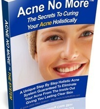 Acne No More Book Review   Health   Scoop.it