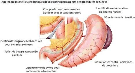 Sleeve gastrique - gastrectomie avec SGT | Opération Sleeve gastrique en Tunisie | Scoop.it
