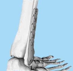 An Overview of Locking Plate System | Orthopedic Implants | Orthopaedic Surgical Instruments | Orthopedic Plates & Screws | Scoop.it