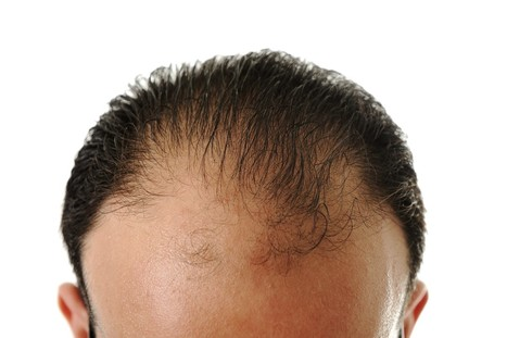 """Bala Cynwyd Hair Restoration: Never Too Late to Avoid Being """"Top Gone"""" 