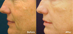 Pelleve Wrinkle Reduction System | Skin Tightening | wrinkle reduction boca raton | Scoop.it