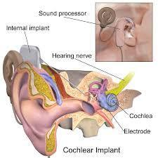 Cochlear Implants May Benefit Mind and Mood of Older People | Social Neuroscience Advances | Scoop.it