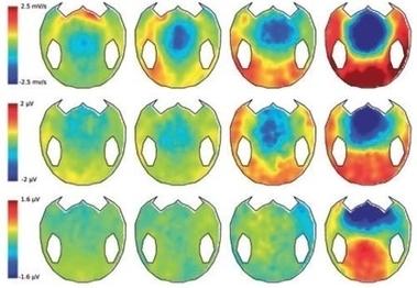 Un algorithme détecte des signes de conscience chez des malades en état végétatif | Science Actualités | Scoop.it