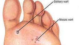 Warts Treatment | Wart Cure | Laser Fungus Treatment Canada | Scoop.it